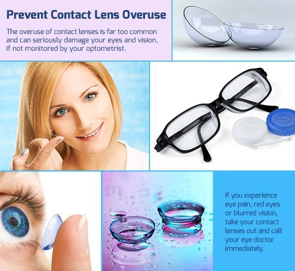 contactlens-overuse-interstitial